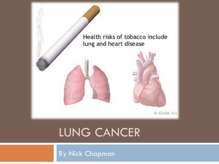 LUNG CANCER By Nick Chapman