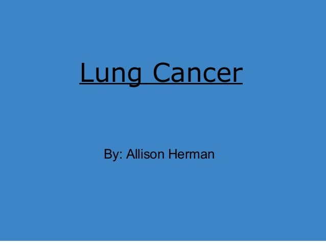 Lung Cancer Lung Cancer By: Allison Herman