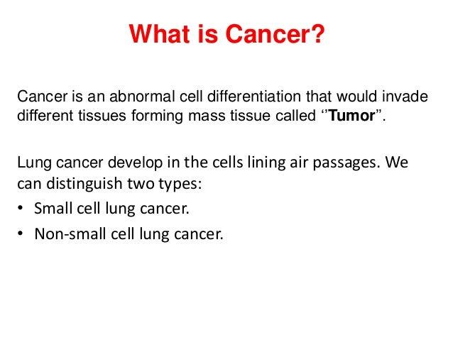Lung cancer nassim jalal touil 27 feb2013