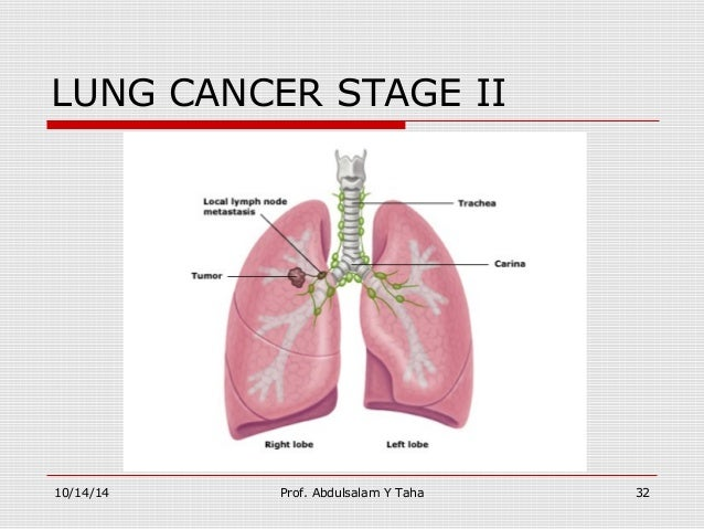 Image Result For Stage  Lung Cancer Life Expectancy