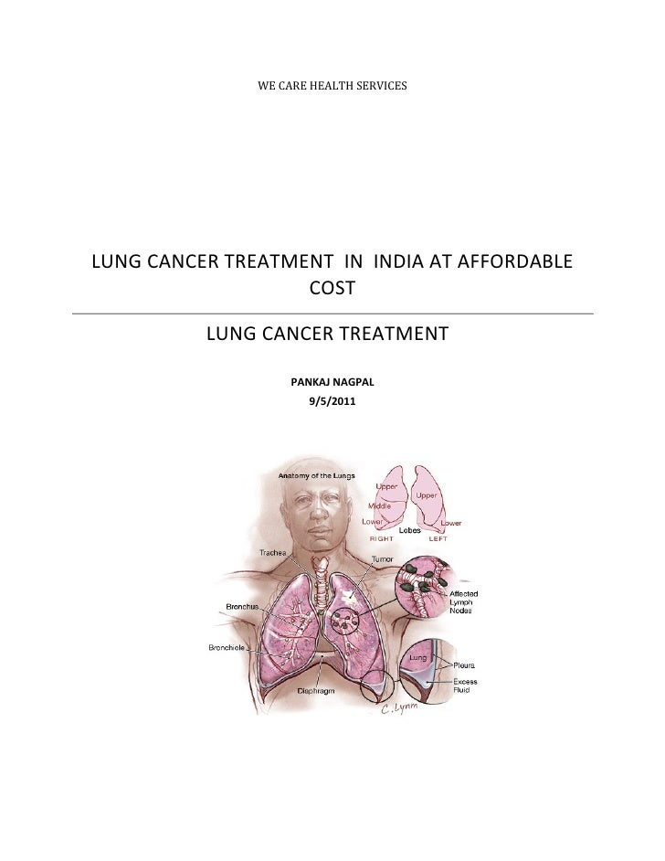 WE CARE HEALTH SERVICESLUNG CANCER TREATMENT IN INDIA AT AFFORDABLE                   COST          LUNG CANCER TREATMENT ...