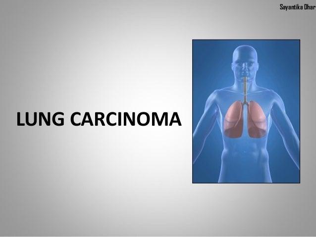 Sayantika DharLUNG CARCINOMA