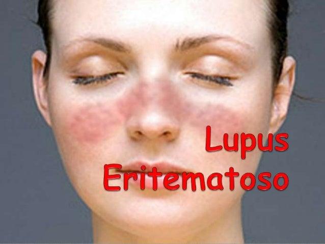 Lupus Eritematoso Conceptos  Lupus: LOBO  Eritematoso: ROJO  La lesión de la piel semejaba la  mordedura de un lobo