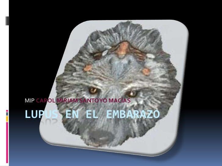 LUPUS EN EL EMBARAZO<br />MIP CAROL MIRIAM SANTOYO MACÍAS<br />