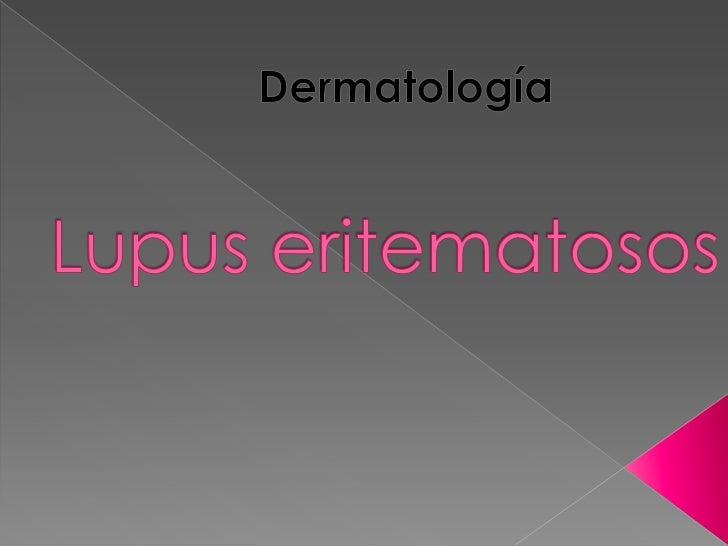    Lupus eritematosos discoide   Lupus eritematoso sistémico   Lupus eritematoso profundo   Morfea