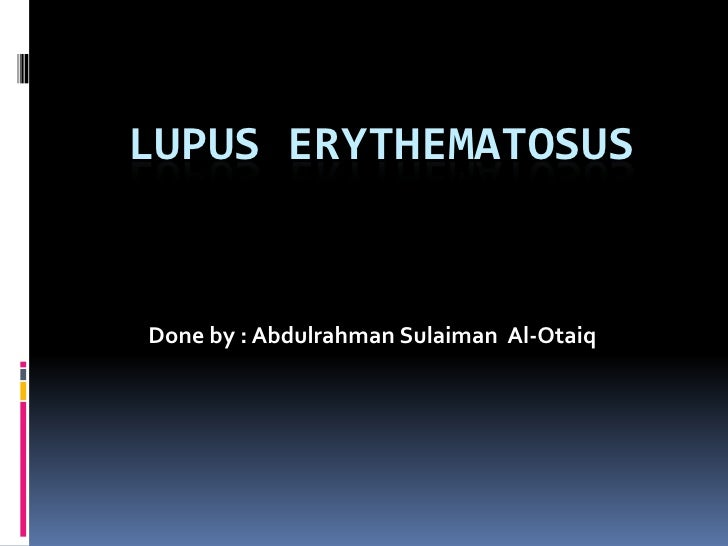 LUPUS ERYTHEMATOSUS Done by : AbdulrahmanSulaiman  Al-Otaiq