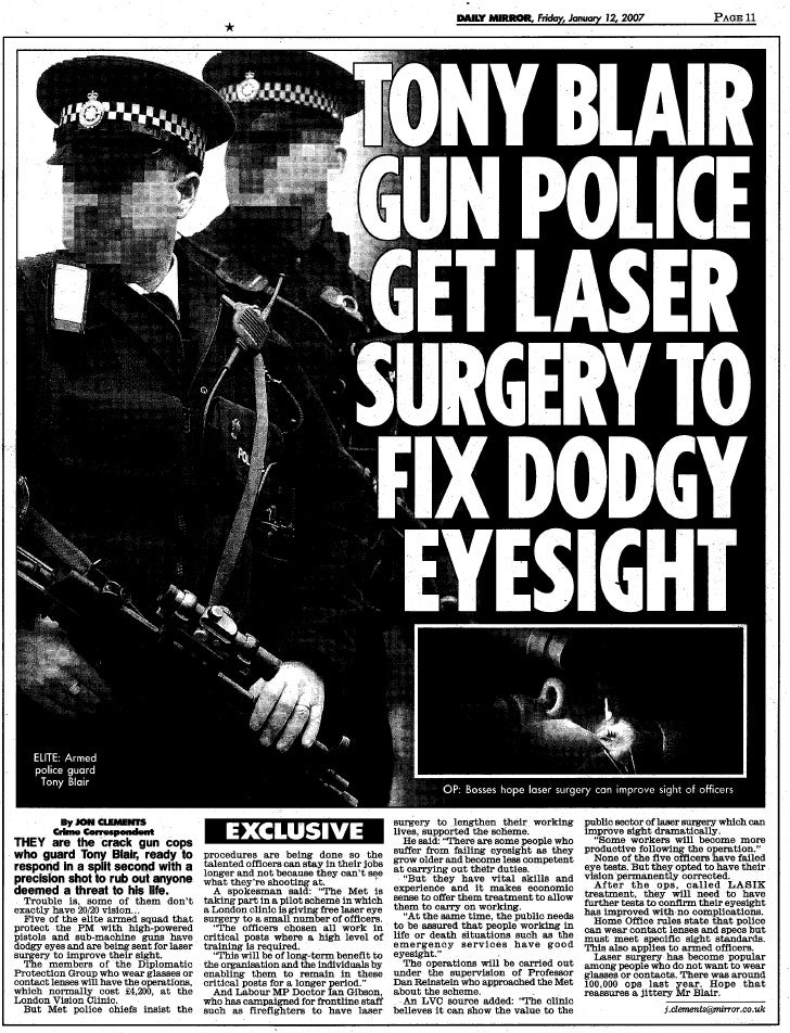 Daily Mirror Laser Eye Surgery Article