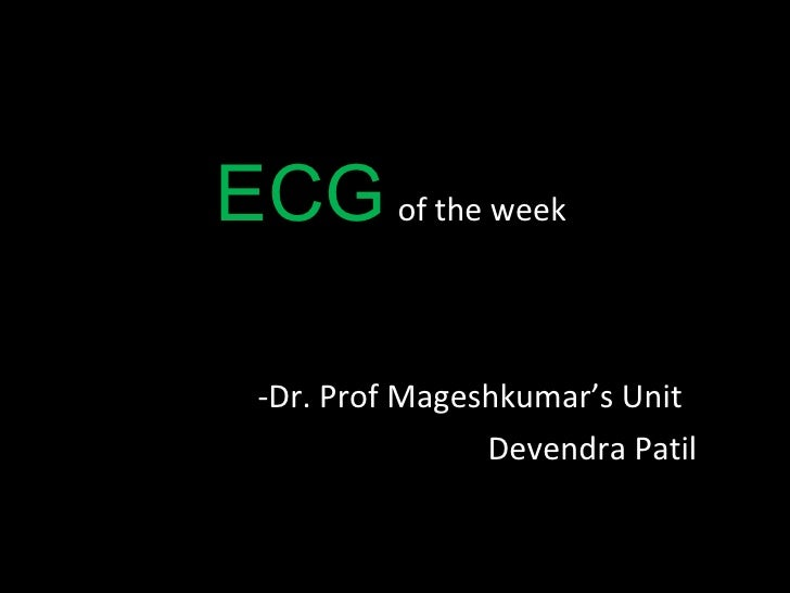 ECG   of the week  <ul><li>Dr. Prof Mageshkumar's Unit  </li></ul><ul><li>Devendra Patil </li></ul>