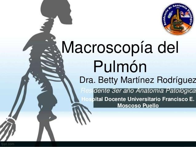 Macroscopía del Pulmón Dra. Betty Martínez Rodríguez Residente 3er año Anatomía Patológica Hospital Docente Universitario ...