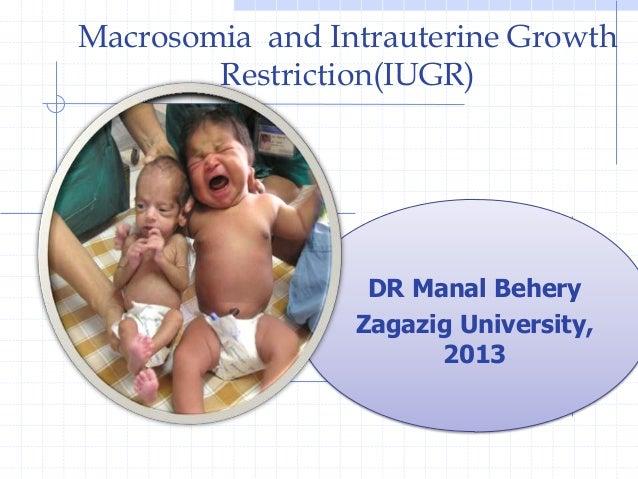 Macrosomia and Intrauterine GrowthRestriction(IUGR)DR Manal BeheryZagazig University,2013