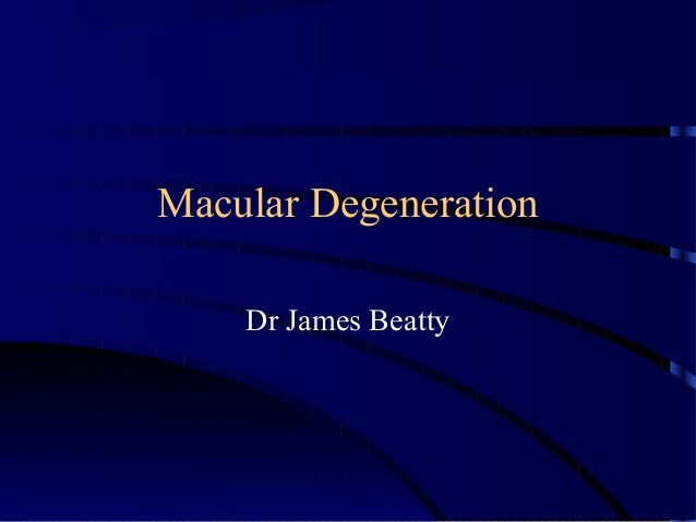 Macular Degeneration Dr James Beatty