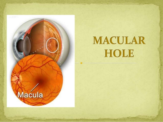  MACULA : Round yellow area at posterior  pole 5.5 mm size – 3 mm temporal 1 mm inferior to disc