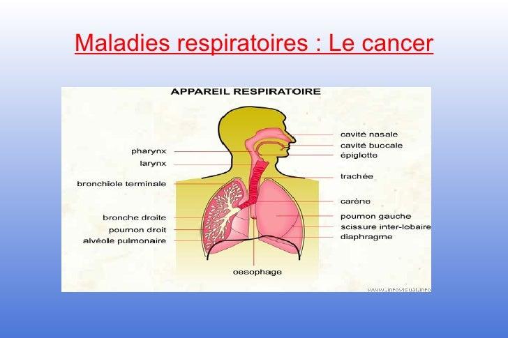 Maladies respiratoires : Le cancer