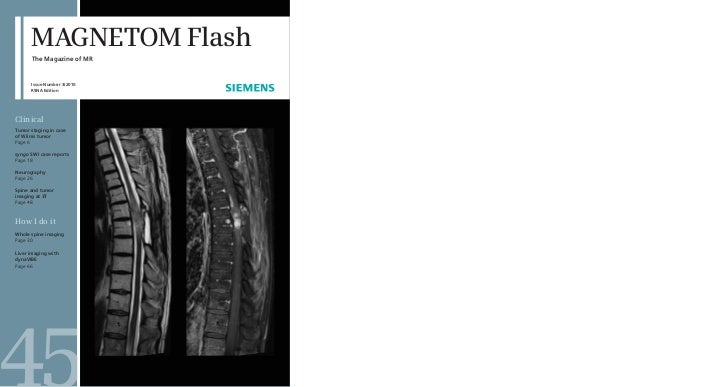 MAGNETOM Flash      The Magazine of MR      Issue Number 3/2010      RSNA EditionClinicalTumor staging in caseof Wilms tum...