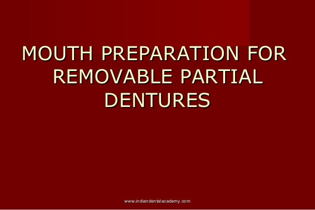 MOUTH PREPARATION FOR REMOVABLE PARTIAL DENTURES  www.indiandentalacademy.com