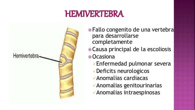 El tratamiento protruzii del departamento lumbar por los métodos públicos