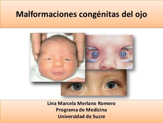 Malformaciones congénitas del ojo  Lina Marcela Merlano Romero Programa de Medicina Universidad de Sucre