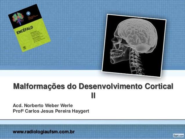 Malformações do desenvolvimento cortical
