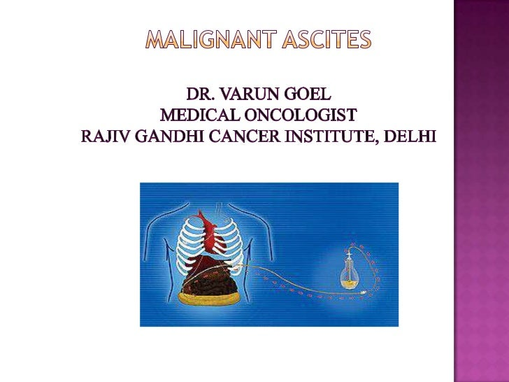  Malignant    ascites (abnormal accumulation of fluid in the  peritoneal cavity ) is a manifestation of end stage  events...