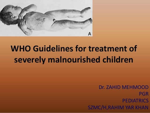 WHO Guidelines for treatment ofseverely malnourished childrenDr. ZAHID MEHMOODPGRPEDIATRICSSZMC/H,RAHIM YAR KHAN