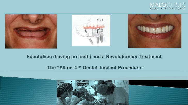 """Edentulism (having no teeth) and a Revolutionary Treatment: The """"All-on-4™ Dental  Implant Procedure"""""""