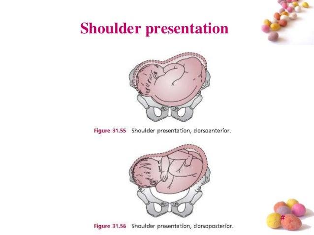 Image Gallery Shoulder Presentation