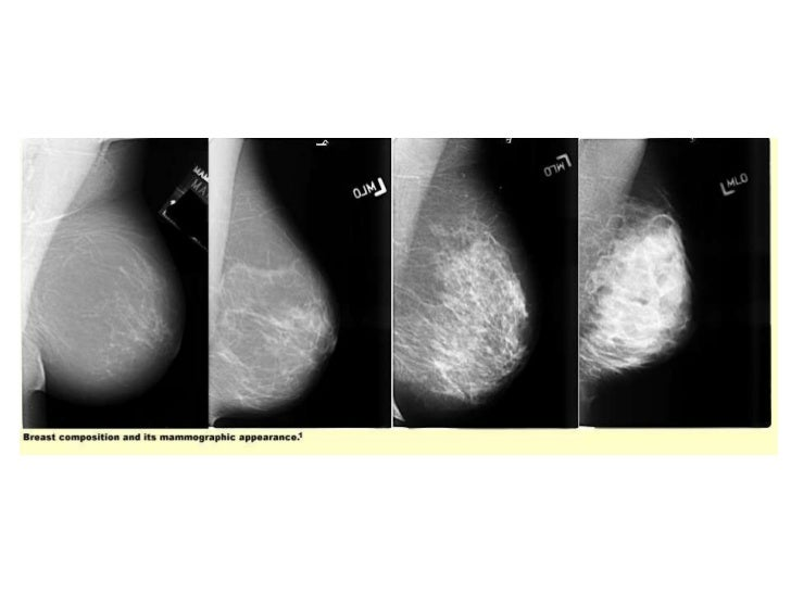 image processing algorithms for digital mammography a pictorial essay Digital mammographic artifacts on full-field systems: what are they and how do i  fix  image processing algorithms for digital mammography: a pictorial essay.
