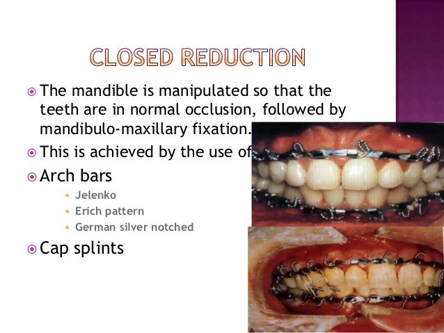 management of mandibular condylar fractures mcf Full-text paper (pdf): open versus closed reduction: mandibular condylar fractures in children the purpose of the study was to review the literature regarding the evolution of current thoughts on management of mandibular condylar fractures who had sustained a functionally treated unilateral mcf.