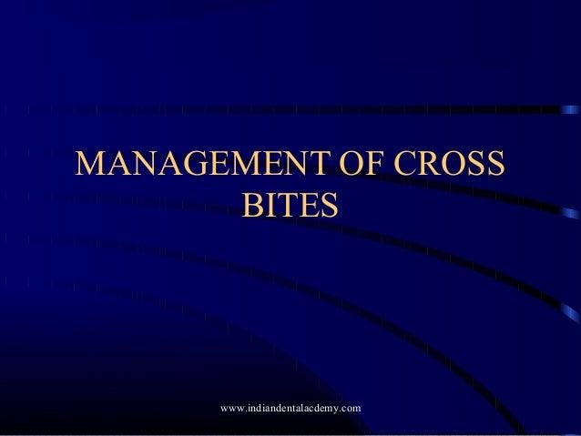 MANAGEMENT OF CROSS BITES  www.indiandentalacdemy.com