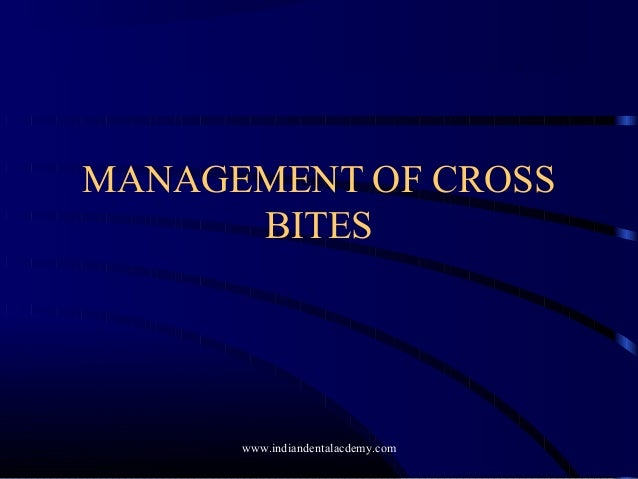 Management of cross bite  /certified fixed orthodontic courses by Indian dental academy