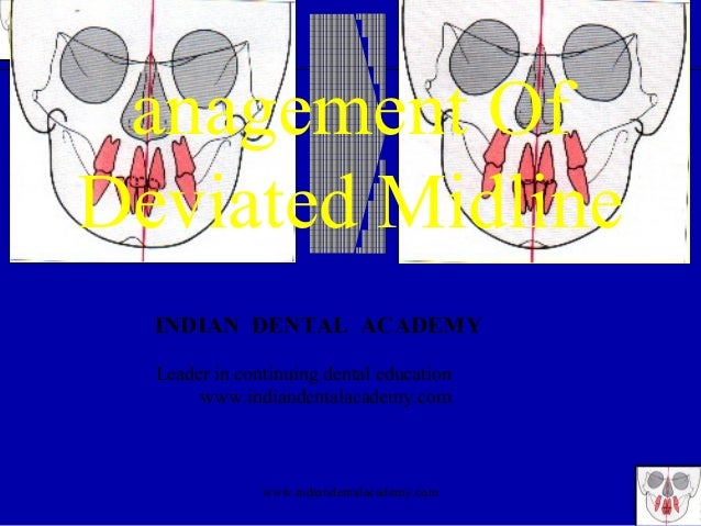 Management of deviated midline