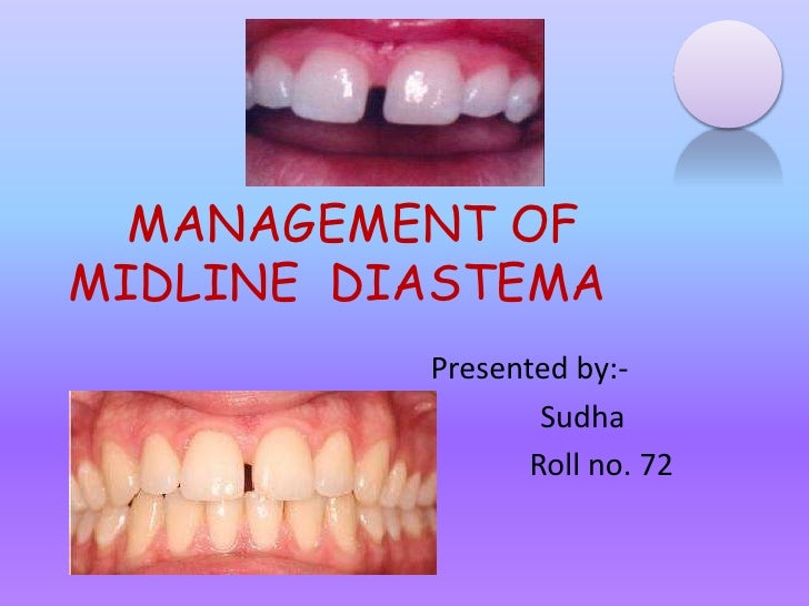 MANAGEMENT OFMIDLINE DIASTEMA          Presented by:-                  Sudha                 Roll no. 72