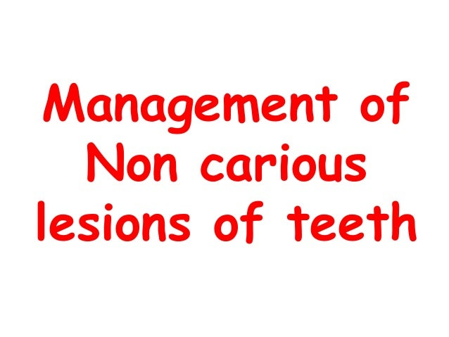 Management of Non carious lesions of teeth