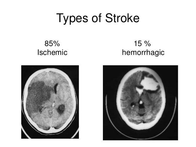 Management Of Stroke 43641181 on For Embolic Stroke Brain