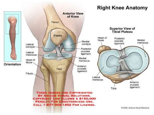 Tibial Plateau Fracture With Rehab-SportsMed
