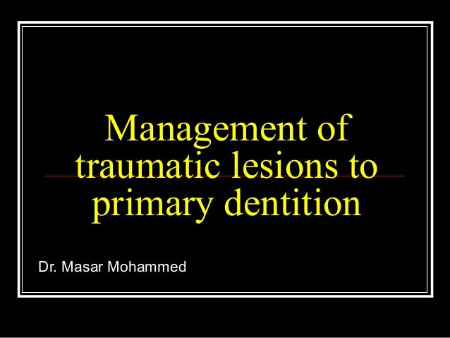 Management of    traumatic lesions to     primary dentitionDr. Masar Mohammed