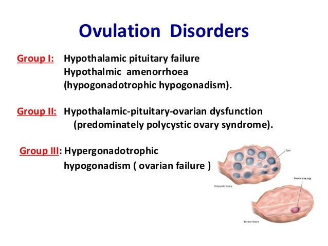 about ovulation disorders