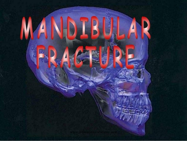 Mandibular fracture 3 / fixed orthodontic courses