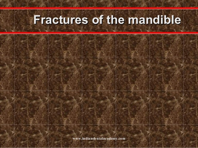 Fractures of the mandible  www.indiandentalacademy.com