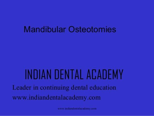 Mandibular Osteotomies  INDIAN DENTAL ACADEMY Leader in continuing dental education www.indiandentalacademy.com www.indian...
