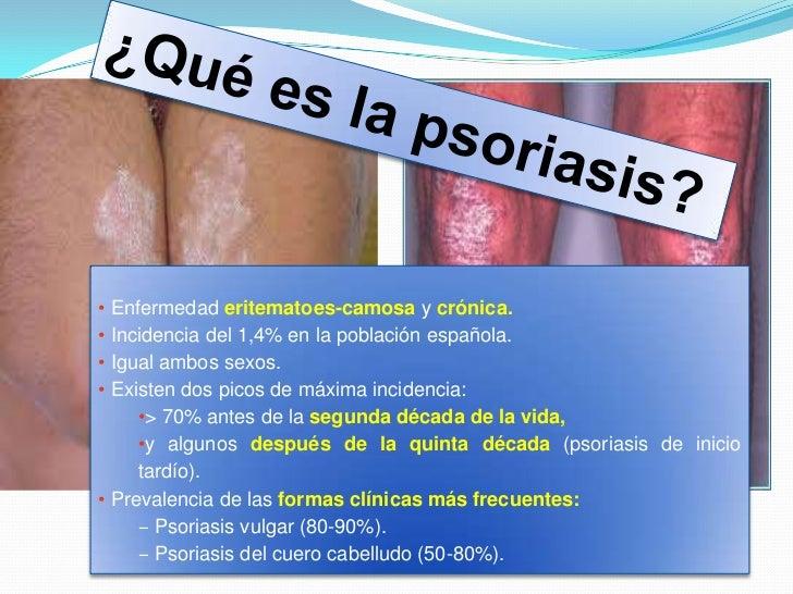 El tratamiento de la psoriasis húngaro con
