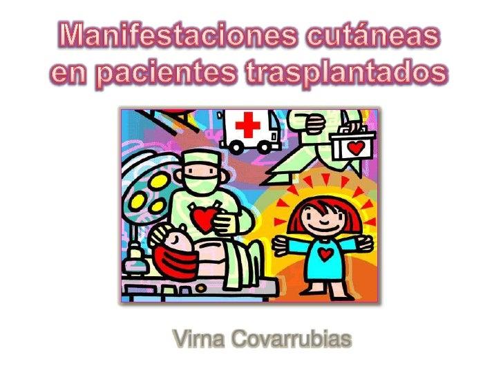Manifestaciones cutáneas en pacientes trasplantados<br />Virna Covarrubias<br />