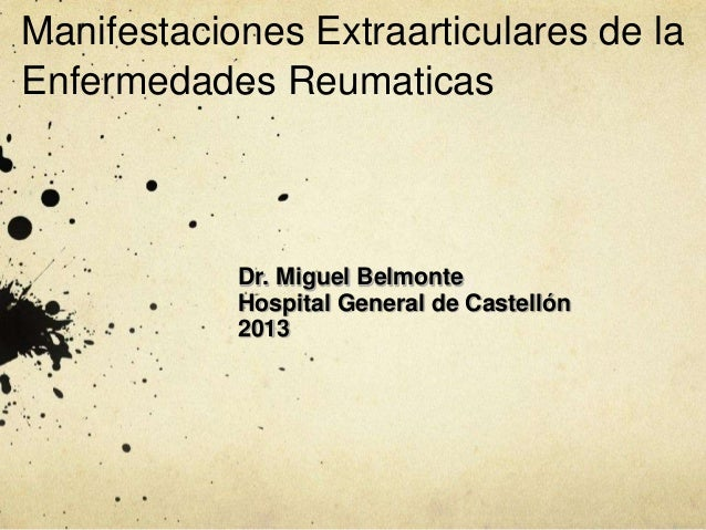 Manifestaciones Extraarticulares de la Enfermedades Reumaticas  Dr. Miguel Belmonte Hospital General de Castellón 2013