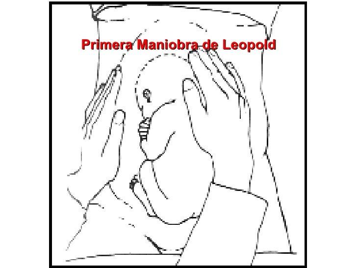 Primera Maniobra de Leopold