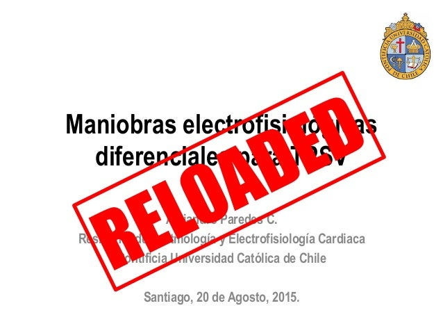 Maniobras electrofisiológicas diferenciales para TPSV Alejandro Paredes C. Residente de Arritmología y Electrofisiología C...