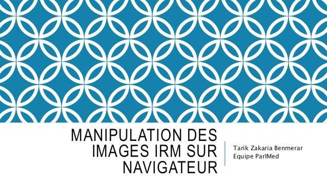 MANIPULATION DES IMAGES IRM SUR NAVIGATEUR Tarik Zakaria Benmerar Equipe ParIMed