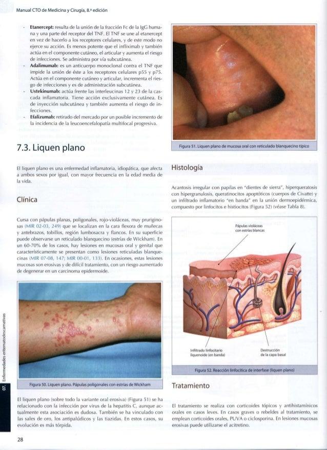 Los pinchazos que ayudan de la psoriasis