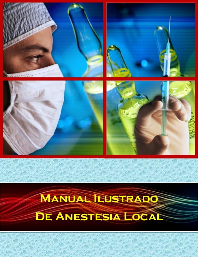 Manual Ilustrado De Anestesia Local
