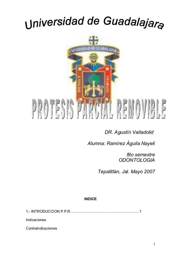 Manual Removible I