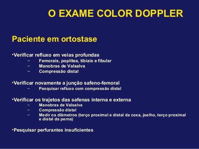 Exame doppler venoso